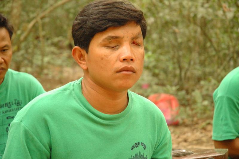 cambodia_mines_victims_5